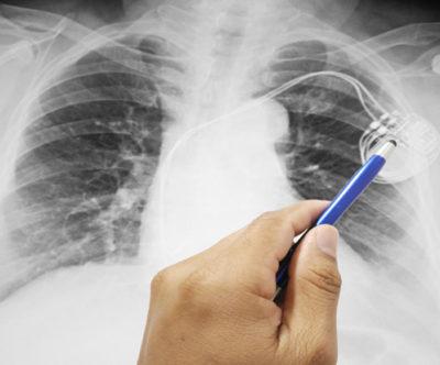 Implantação do pacemaker: o que deve saber